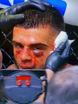 Lesao UFC